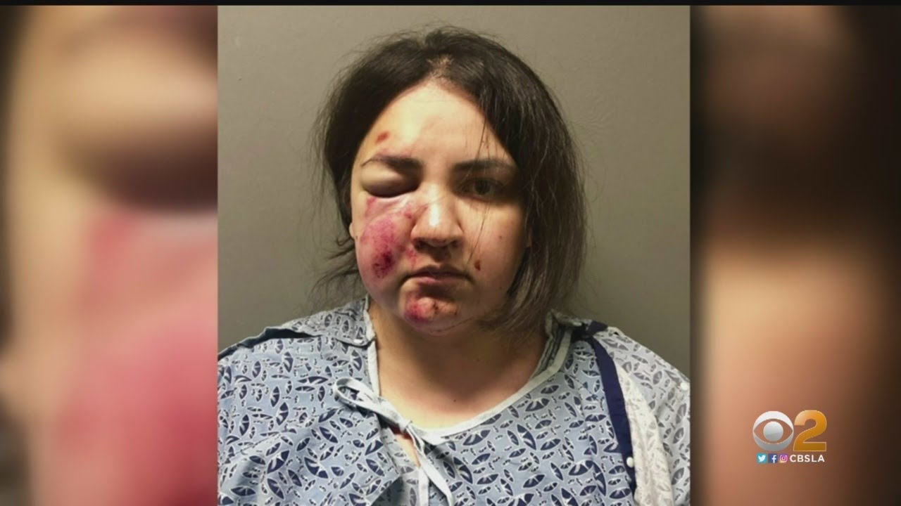 Young Mother Accused Of Attacking Children In Upland