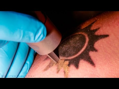 How Laser Tattoo Removal Works - Smarter Every Day 123
