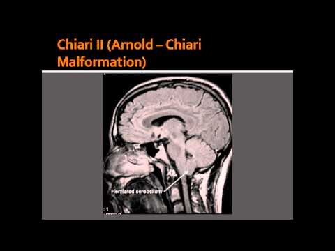 arnold chiari malformation with syrinx The natural history of symptomatic adult type i arnold-chiari malformation  with chiari malformation type i and syrinx  to arnold-chiari i malformation.