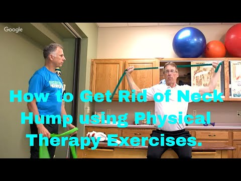 How to Get Rid of Neck Hump using Physical Therapy Posture Exercises