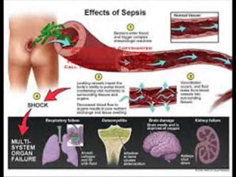 1000  images about Sepsis (Blood Infection) on Pinterest