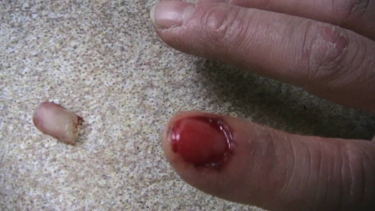 ripping my fingernail completely off - YouTube