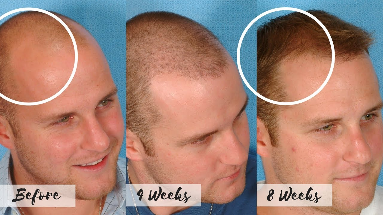 Best way to stop receding hairline