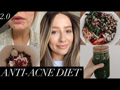 Anti-acne diet | Foods that cleared my skin! - YouTube