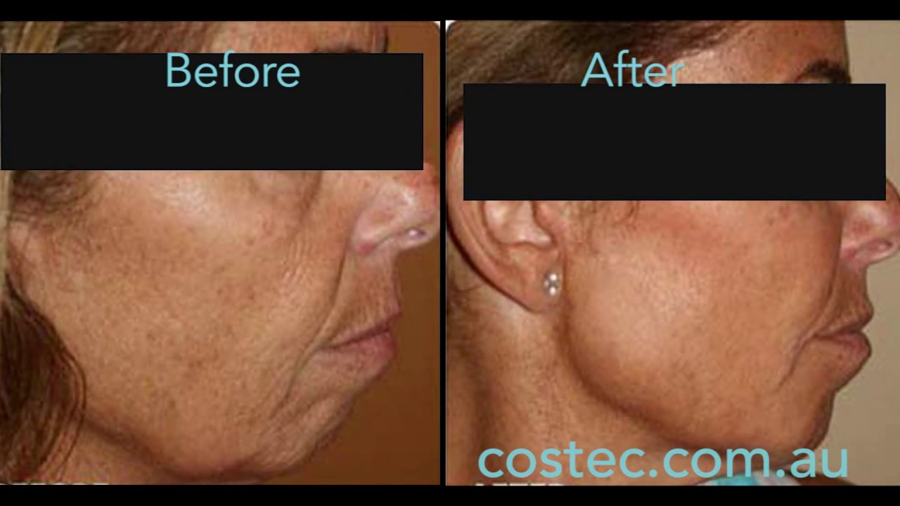 HIFU™ treatment - Before & After pictures for Face Lift and Skin Tightening