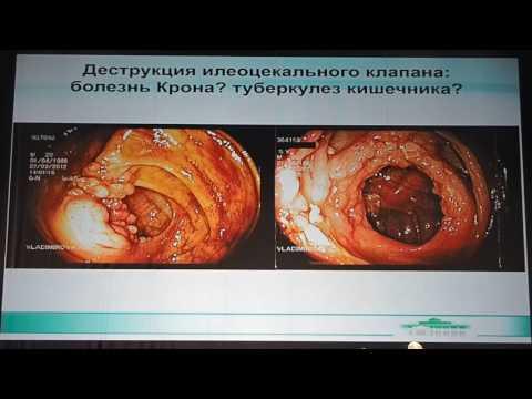 Туберкулез кишечника и болезнь Крона