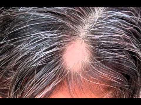 La máscara para el crecimiento de los cabello con la mostaza y la crema agria