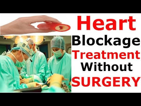 Heart Blockage Treatment Without Surgery Natural Home Remdies As