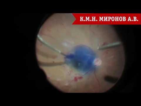 Диабетическая ретинопатия. Симтомы, причины и методы лечения