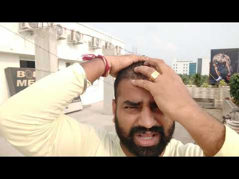 part 5-Going for Hair Transplant/Reached hotel/Tamil Hair Transplant