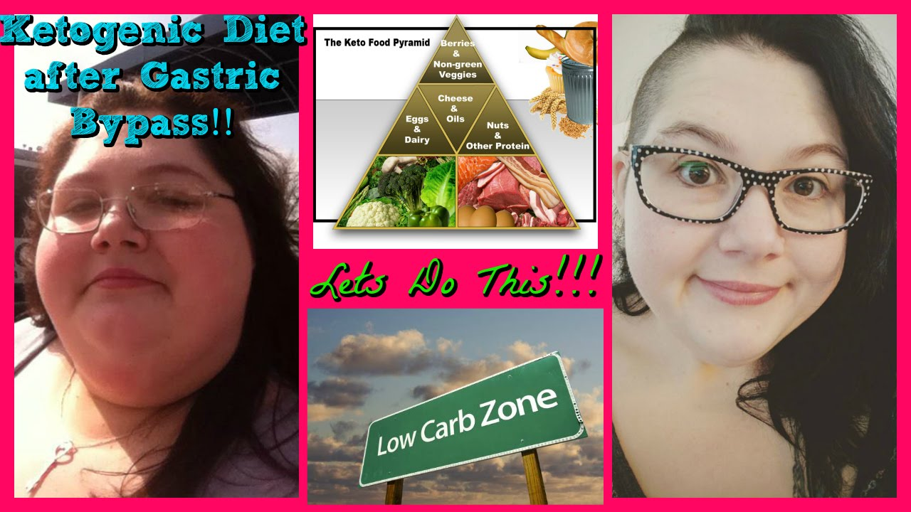 Plus Size Me Ketogenic Diet After Gastric Bypass Two Days Of