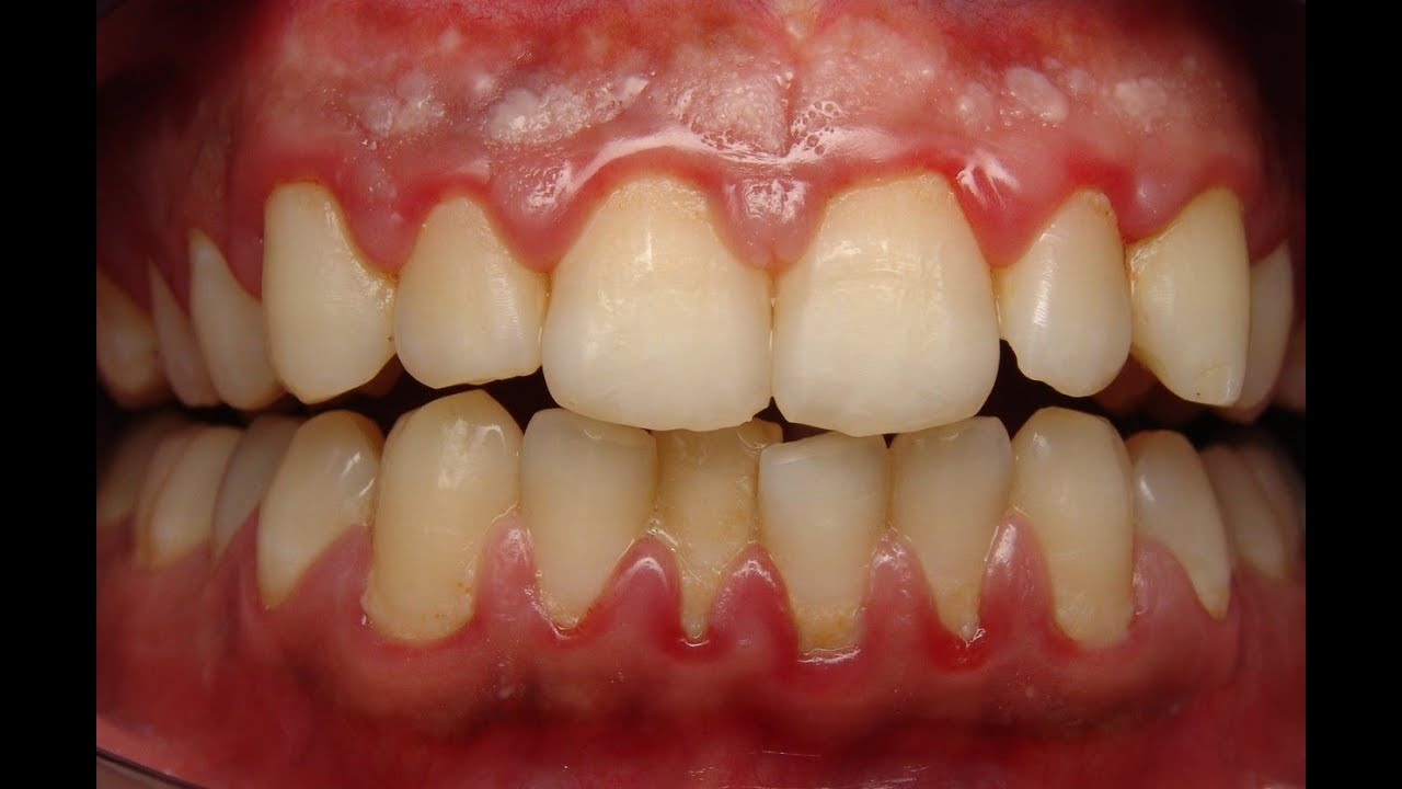 Home Remedies For Gum Disease Receding Gums How To Treat Gum