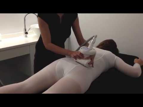 LPG Lipomassage: Tratamiento anticelulítico real
