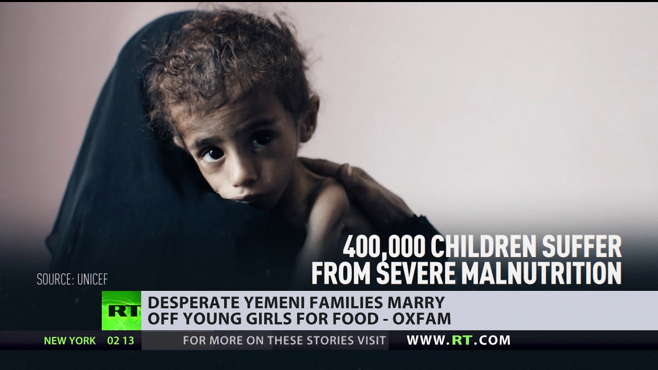 Married at 3?! Yemeni families marry off their kids… to get food