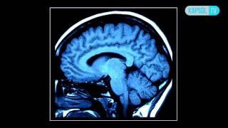 Hidrosefaliyi (Beyinde Su Toplaması) Nasıl Teşhis Edilir?