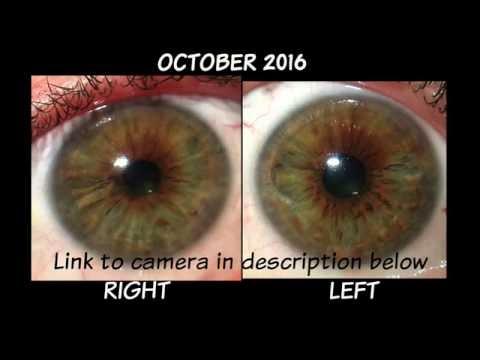 6 Month Iris Comparison April-October 2016 Iridology Review Dr. Robert Morse ND