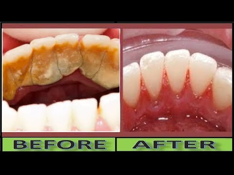 How to Remove TARTAR and Plaque in 3 Minutes Without Scaling, Natural WHITE TEETH