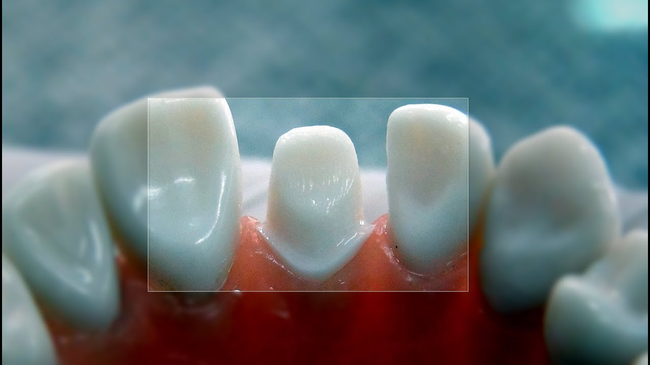 All Ceramic Crown Tooth Preparation For Dental Students Youtube
