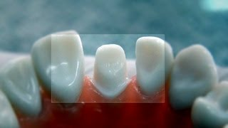 """All ceramic crown """"tooth preparation"""" - for dental students"""