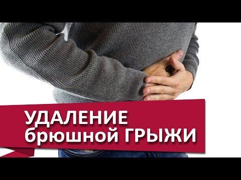 Лечение брюшной грыжи. ✂ Лечение брюшной грыжи с помощью полипропиленовой сетки. МДЦ ОЛИМП.