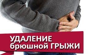 лечение брюшной грыжи.  Лечение брюшной грыжи с помощью полипропиленовой сетки. МДЦ ОЛИМП