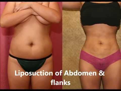 Liposuction Before and After Pictures in Los Angeles