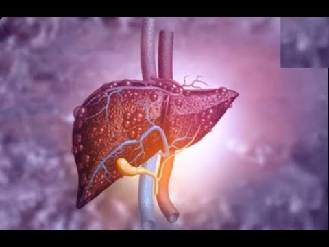 Fatty Liver Home Remedies | Six Foods That Fight Fatty Liver