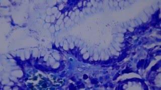 010 Helicobacter pylori, Giemsa stain, HD