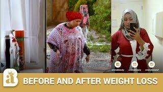Before And After Weight loss   Ka Hor Iyo Ka Dib Sawirkayga  Amenabeauty