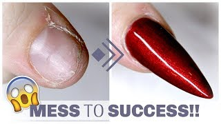 HOW TO FIX A SHORT BROKEN DAMAGED NAIL | GEL AND SILK