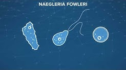 Naegleria Fowleri (the brain-eating amoeba): What is it? How do you prevent it?