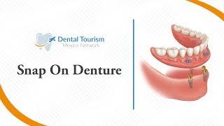 Snap On Denture - Dental Tourism Mexico