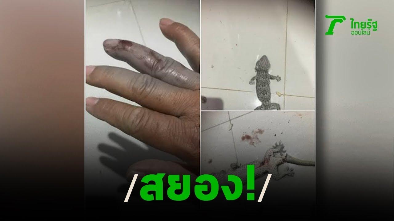 สยอง! หนุ่มนอนรีสอร์ตถูกตุ๊กแกกัดนิ้ว   31-12-62   ข่าวเช้าไทยรัฐวันหยุด