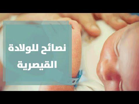 الولادة القيصرية مع رولا القطامي