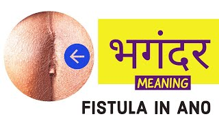 WHAT IS FISTULA IN ANO ? BHAGANDAR MEANING & TREATMENT OPTIONS ?