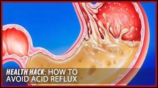 How Avoid Acid Reflux Health Hacks