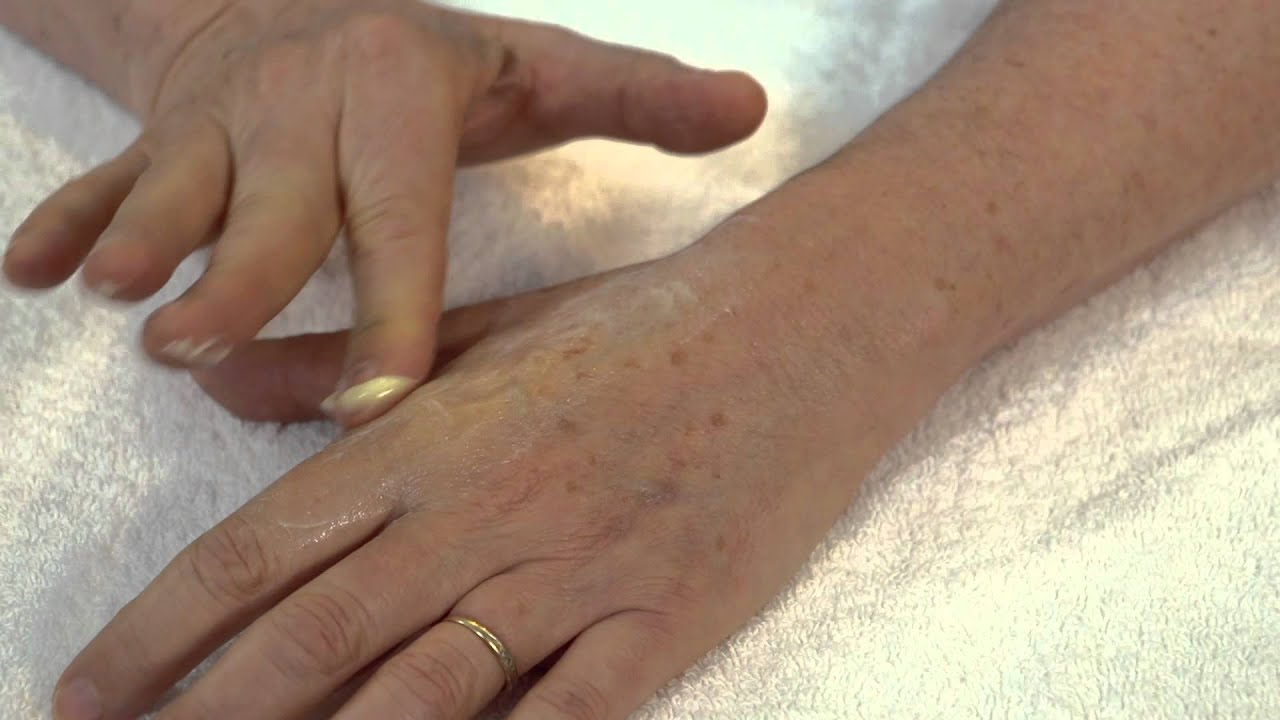 How To Massage Scar Tissue And Break It Down In Hands And