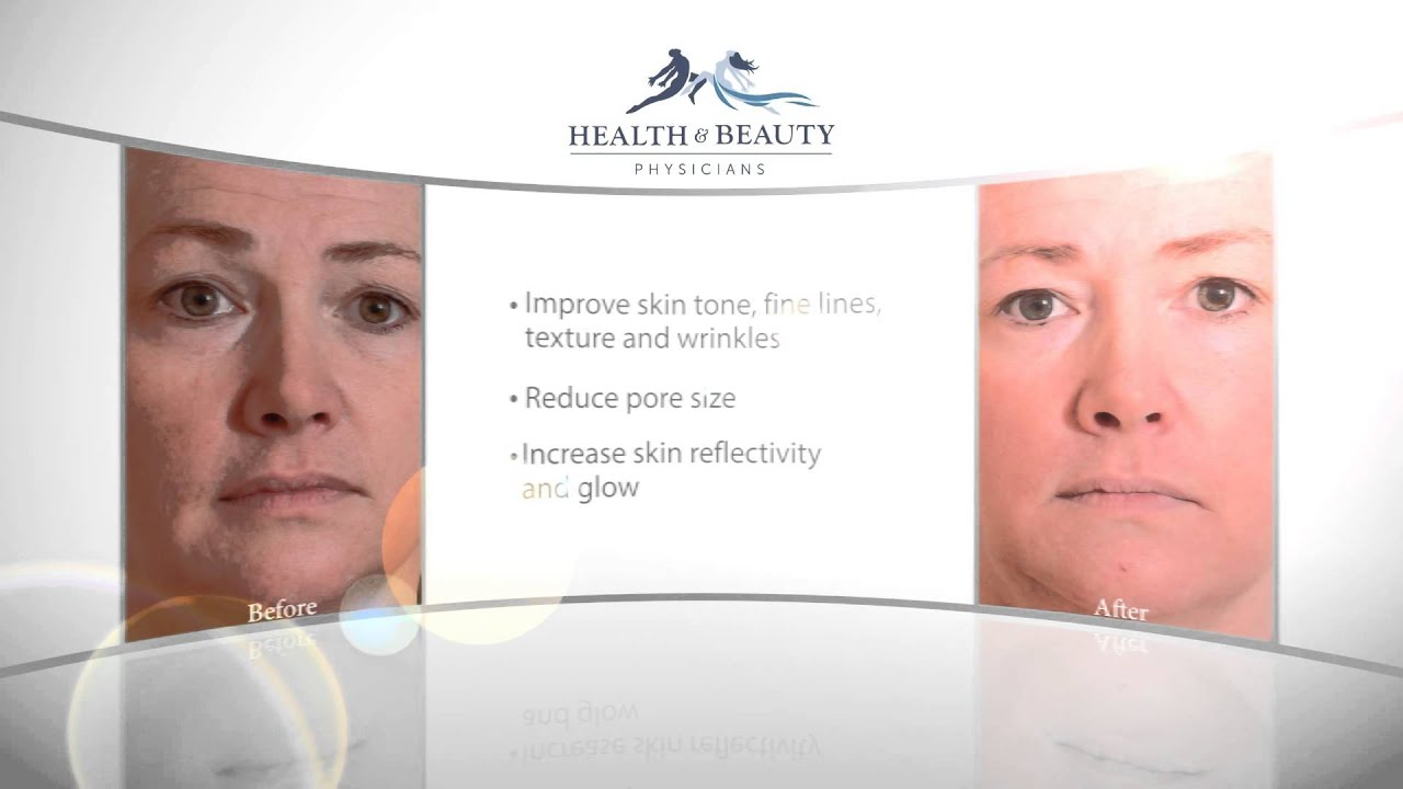 Younger-Looking Skin with Sciton Halo | Los Gatos, Saratoga