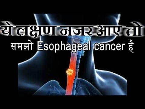 ये लक्षण नजर आए तो समझो  गले का  केंसर  है   If you see these symptoms understand Esophagea l Cancer
