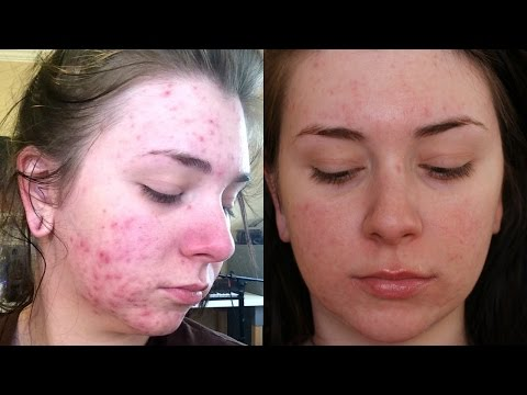 1 Year After Accutane & Plans For Acne Scars (Laser Surgery) from YouTube · Duration:  9 minutes 20 seconds