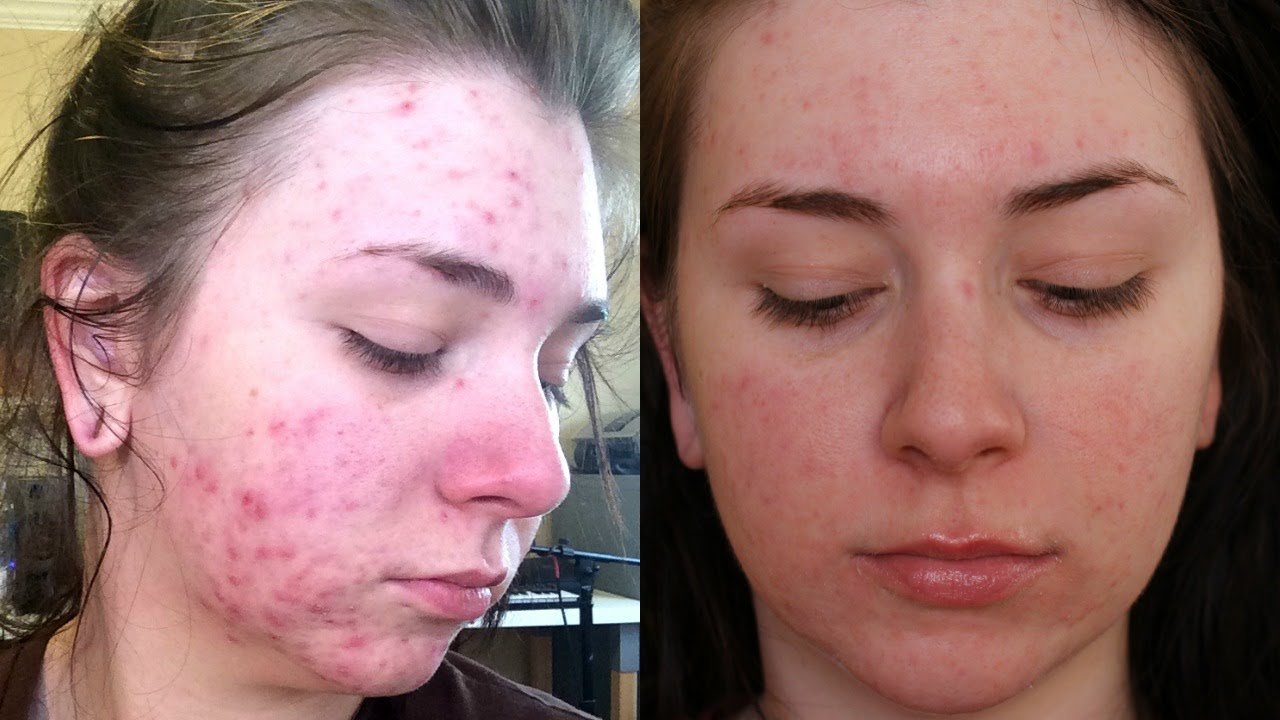 My Accutane Journey 1 Month Update Side Effects