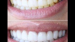 видео Отбеливание зубов дома с помощью народных средств