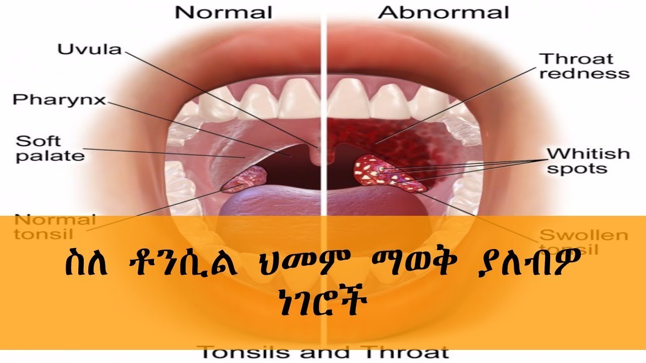 Ethiopia - Tonsillitis: Causes, Symptoms, and Diagnosis