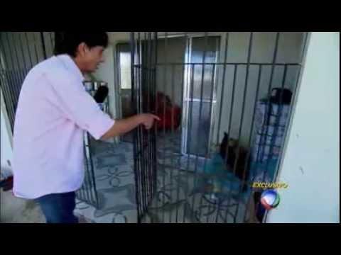 Repórter Visita Gêmeos Siameses Em Pernambuco, Um Mês Após Cirurgia