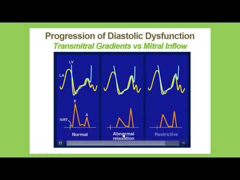 Echocardiographic Assessment Of Diastolic Function: A Joint Presentation Of IAC, ASE And SDMS