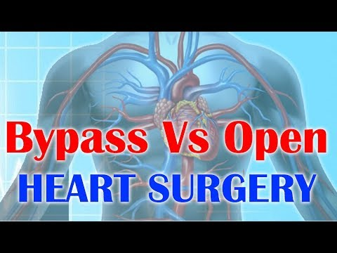 What is the difference between bypass surgery & open heart surgery? | Coronary artery bypass surgery