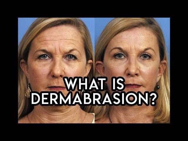Dermabrasion
