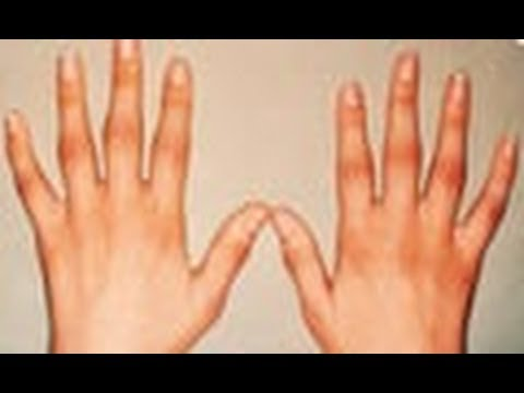 Arthritis and Ayurvedic treatment