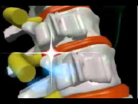 Lfk para el departamento de pecho de la columna vertebral la osteocondrosis de la estampa