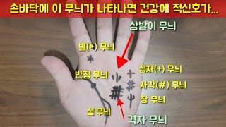 손바닥에 이 무늬가 있다면 건강에 적신호가 왔다는 의미. 손금의 기초